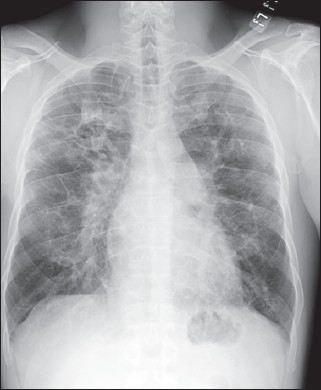 chest x ray patchy nodular interstitial disease with areas of