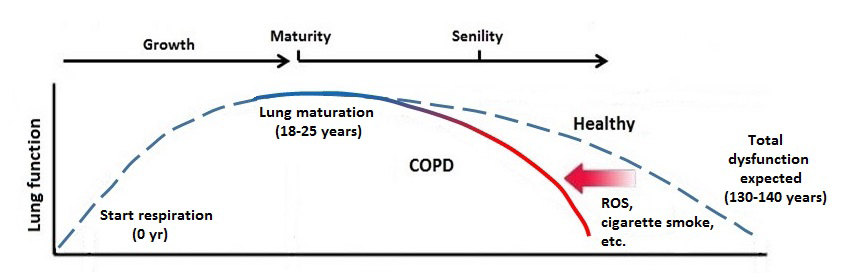 Fig. COPD and Aging_Seimetz,Hadzic.png